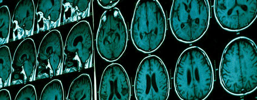 Cim centre de radiologie et d 39 imagerie m dicale sud r union - Cabinet de radiologie et d echographie ...
